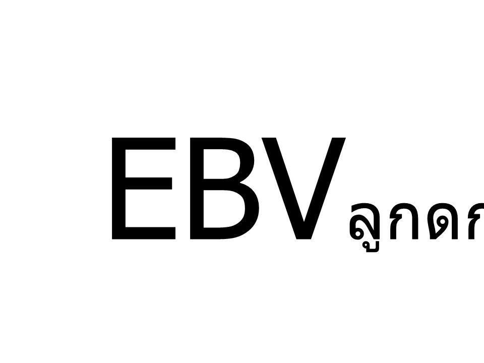 EBV ลูกดก