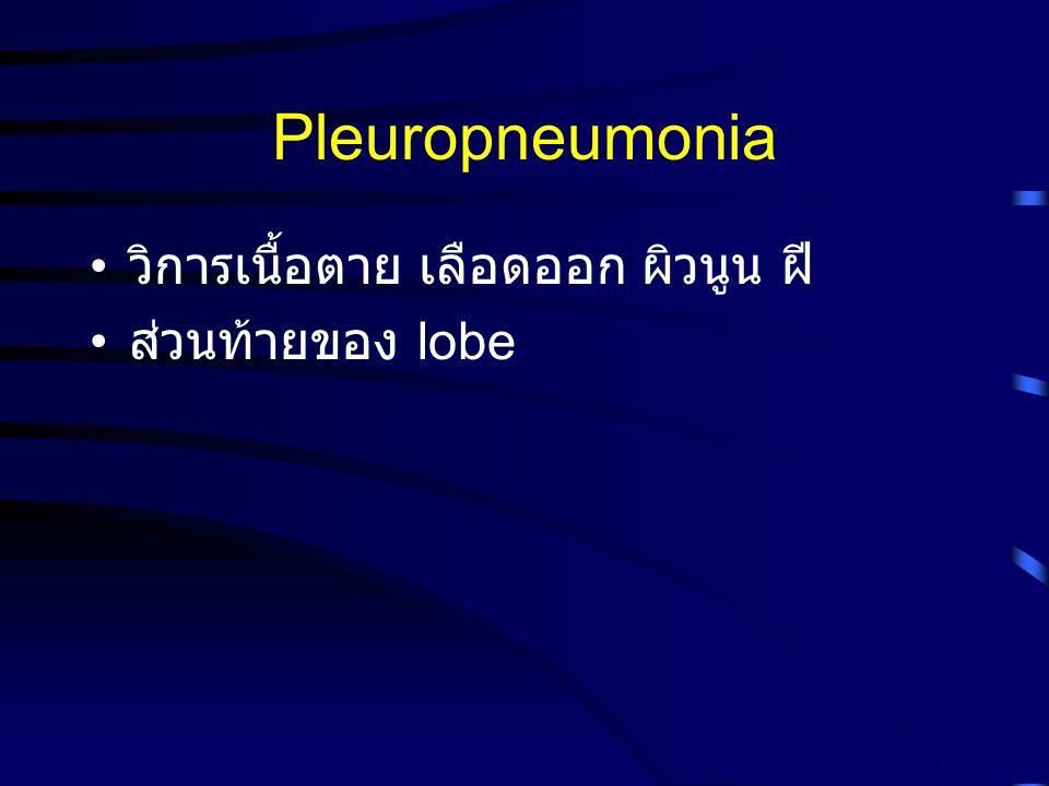 Pleuropneumonia วิการเนื้อตาย เลือดออก ผิวนูน ฝี ส่วนท้ายของ lobe