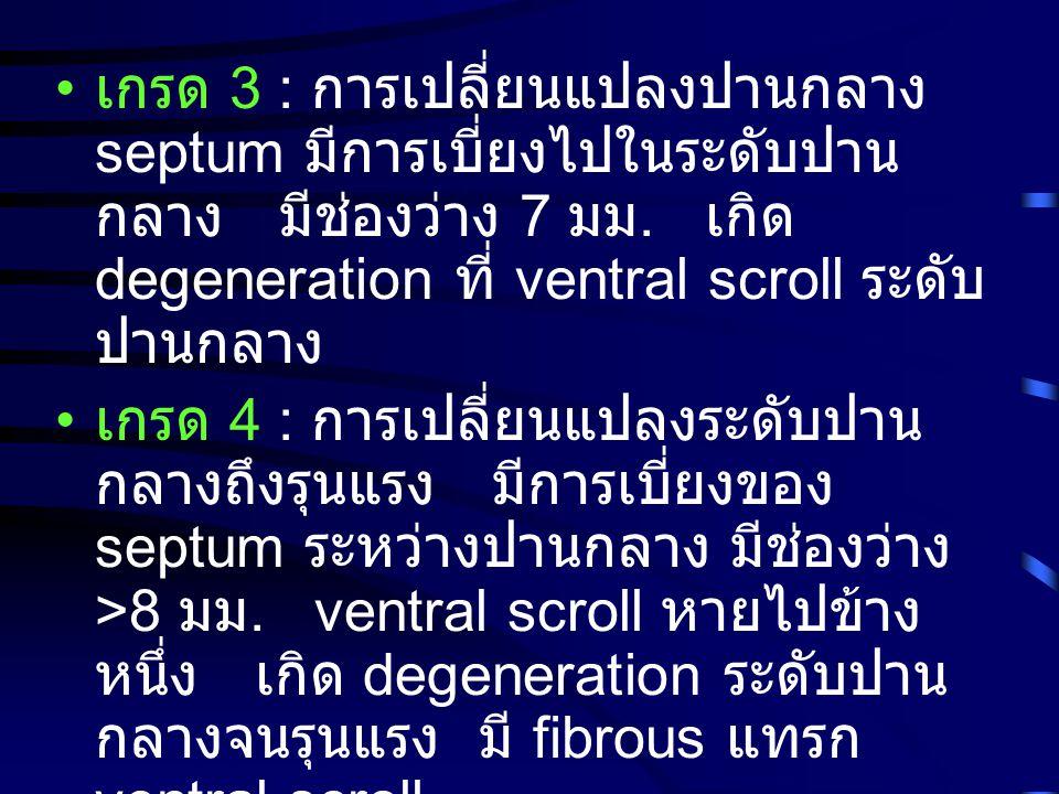 เกรด 3 : การเปลี่ยนแปลงปานกลาง septum มีการเบี่ยงไปในระดับปาน กลาง มีช่องว่าง 7 มม. เกิด degeneration ที่ ventral scroll ระดับ ปานกลาง เกรด 4 : การเปล