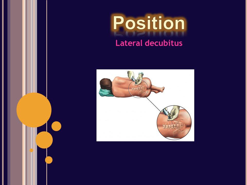 Lateral decubitus