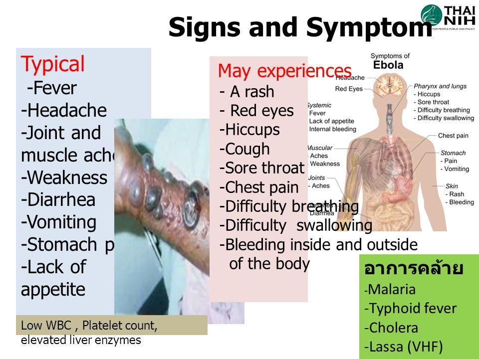 การวินิจฉัยแยกโรค ชื่อโรคระยะฟัก ตัว ( วัน ) อาการสำคัญการตรวจทาง ห้องปฏิบัติการ 1.