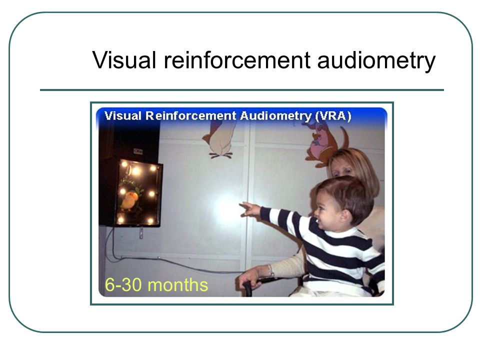 Visual reinforcement audiometry 6-30 months