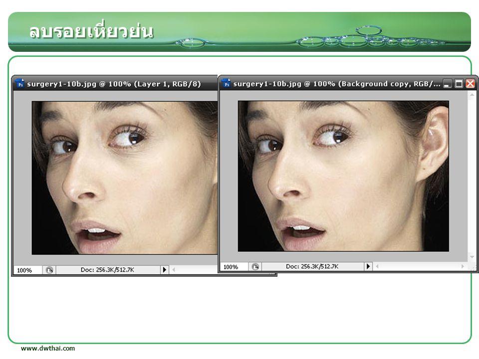 ลบรอยเหี่ยวย่น www.dwthai.com