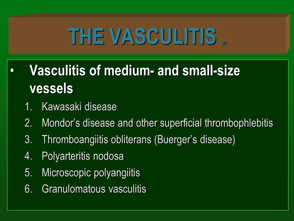THE VASCULITIS (9) Vasculitis of medium- and small-size vessels Vasculitis of medium- and small-size vessels 1.Kawasaki disease 2.Mondor's disease and