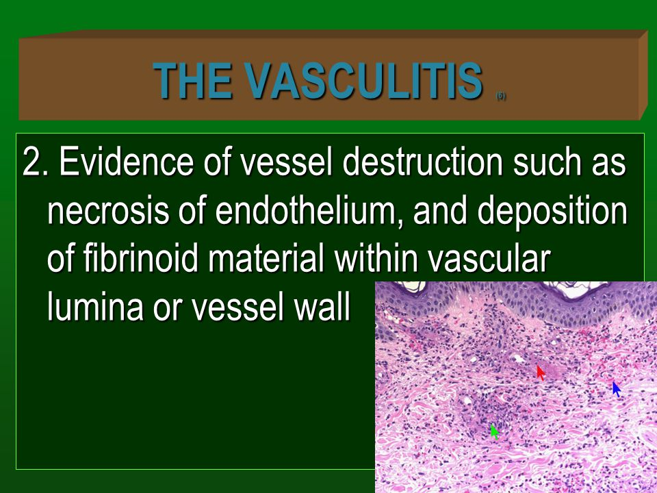 THE VASCULITIS (6) 2. Evidence of vessel destruction such as necrosis of endothelium, and deposition of fibrinoid material within vascular lumina or v