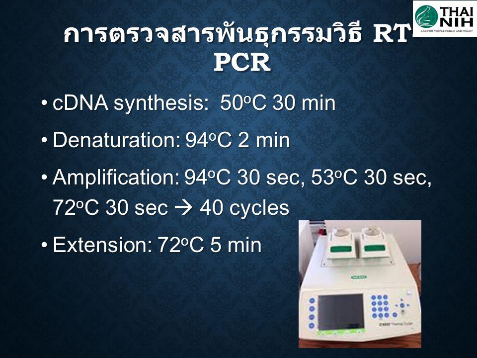 cDNA synthesis: 50 o C 30 min cDNA synthesis: 50 o C 30 min Denaturation: 94 o C 2 min Denaturation: 94 o C 2 min Amplification: 94 o C 30 sec, 53 o C