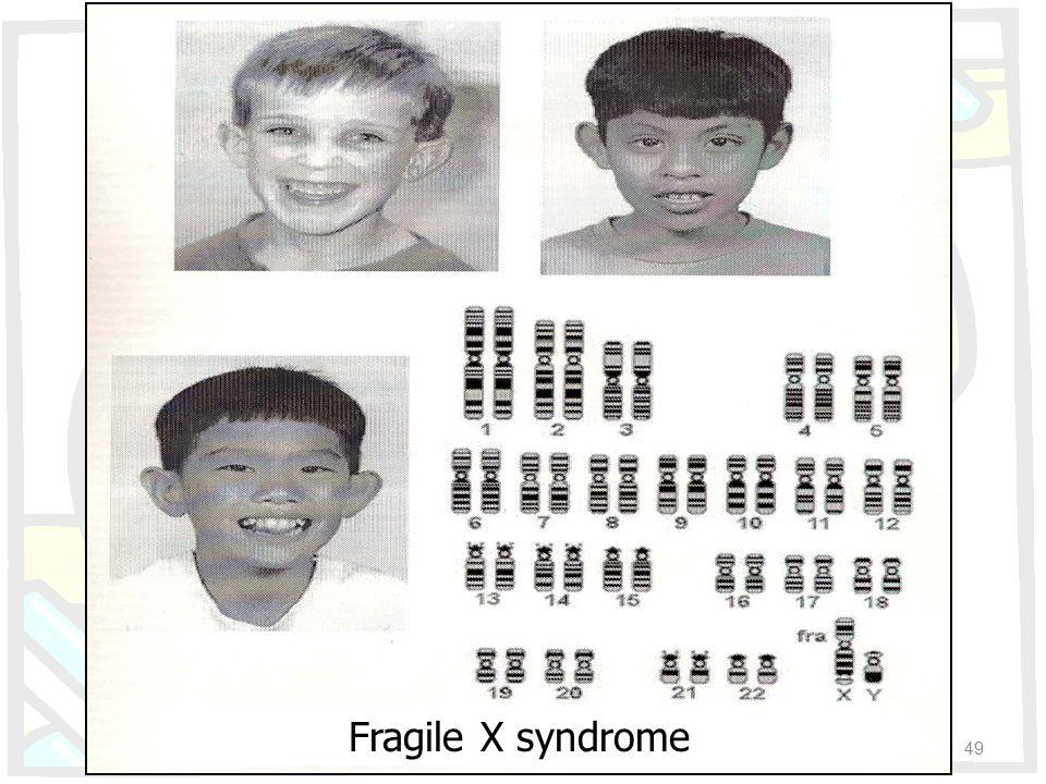 Fragile X syndrome 49