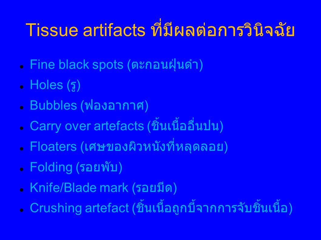 Tissue artifacts ที่มีผลต่อการวินิจฉัย Fine black spots ( ตะกอนฝุ่นดำ ) Holes ( รู ) Bubbles ( ฟองอากาศ ) Carry over artefacts ( ชิ้นเนื้ออื่นปน ) Floaters ( เศษของผิวหนังที่หลุดลอย ) Folding ( รอยพับ ) Knife/Blade mark ( รอยมีด ) Crushing artefact ( ชิ้นเนื้อถูกบี้จากการจับชิ้นเนื้อ )