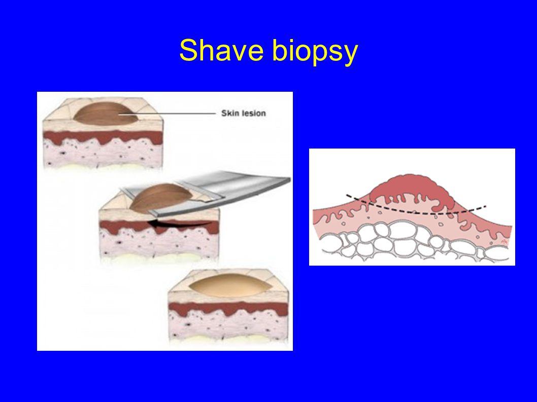 Shave biopsy
