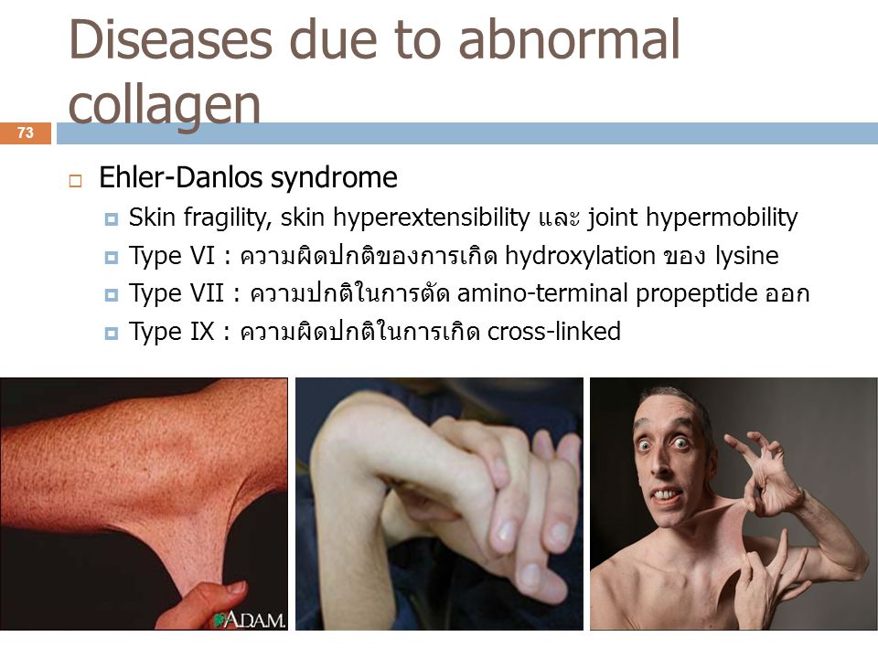 Diseases due to abnormal collagen  Ehler-Danlos syndrome  Skin fragility, skin hyperextensibility และ joint hypermobility  Type VI : ความผิดปกติของ