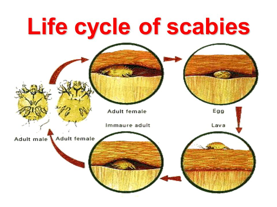 Life cycle of scabies