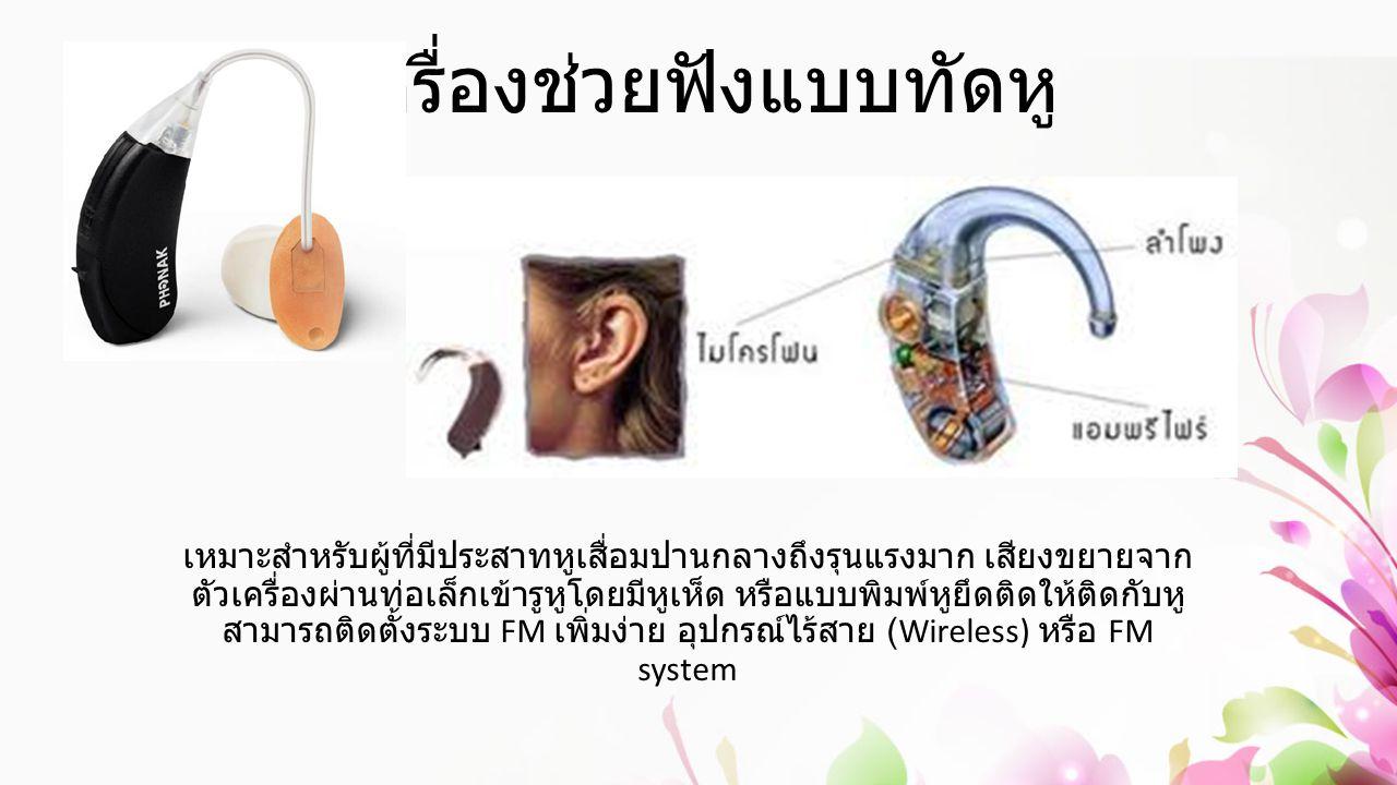 เครื่องช่วยฟังแบบทัดหู เหมาะสำหรับผู้ที่มีประสาทหูเสื่อมปานกลางถึงรุนแรงมาก เสียงขยายจาก ตัวเครื่องผ่านท่อเล็กเข้ารูหูโดยมีหูเห็ด หรือแบบพิมพ์หูยึดติด