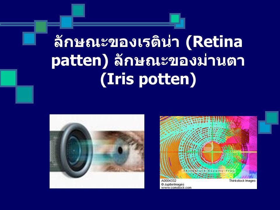 ลักษณะของเรติน่า (Retina patten) ลักษณะของม่านตา (Iris potten)