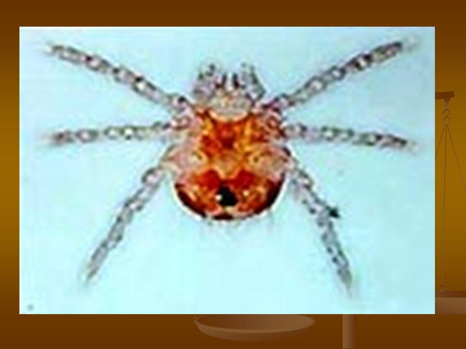 พยากรณ์โรค ก่อนใช้ยาปฏิชีวนะ อัตราการตาย แปรผันจาก 1-60% ขึ้นกับภูมิ ประเทศและสเตรน ก่อนใช้ยาปฏิชีวนะ อัตราการตาย แปรผันจาก 1-60% ขึ้นกับภูมิ ประเทศและสเตรน กว่าจะหาย ใช้เวลานาน การรักษา ที่ทันสมัยขึ้น ทำให้ recovery เร็ว ขึ้น กว่าจะหาย ใช้เวลานาน การรักษา ที่ทันสมัยขึ้น ทำให้ recovery เร็ว ขึ้น