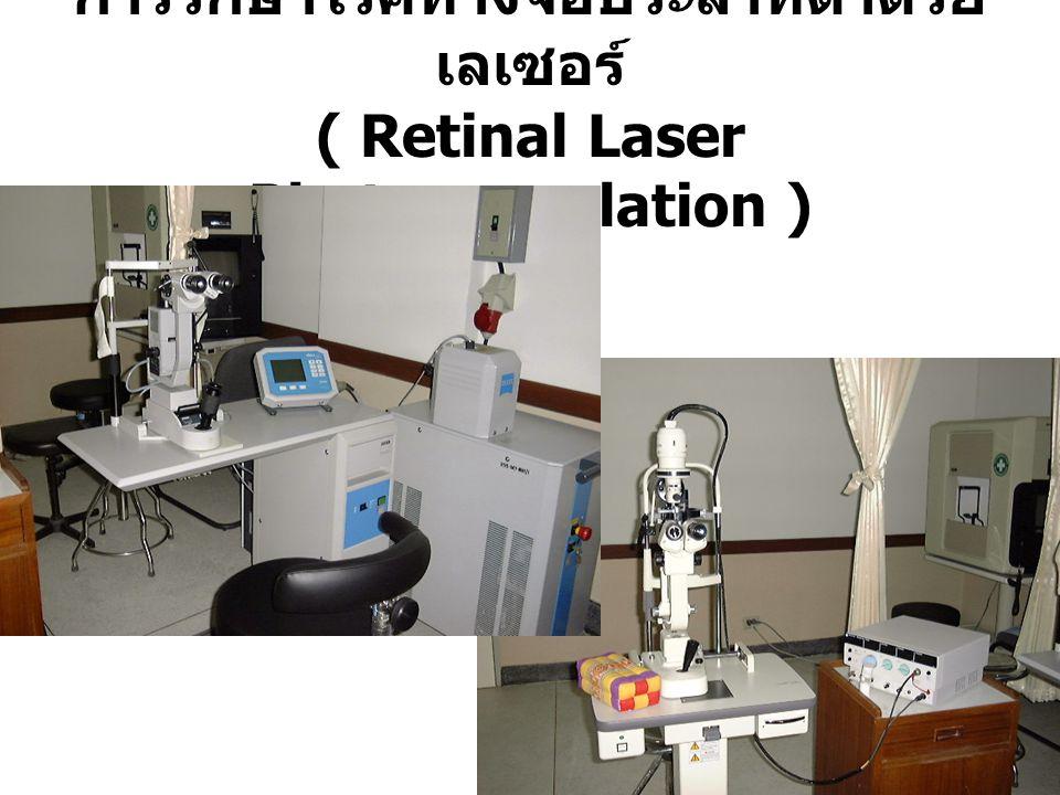 การรักษาโรคทางจอประสาทตาด้วย เลเซอร์ ( Retinal Laser Photocoagulation )