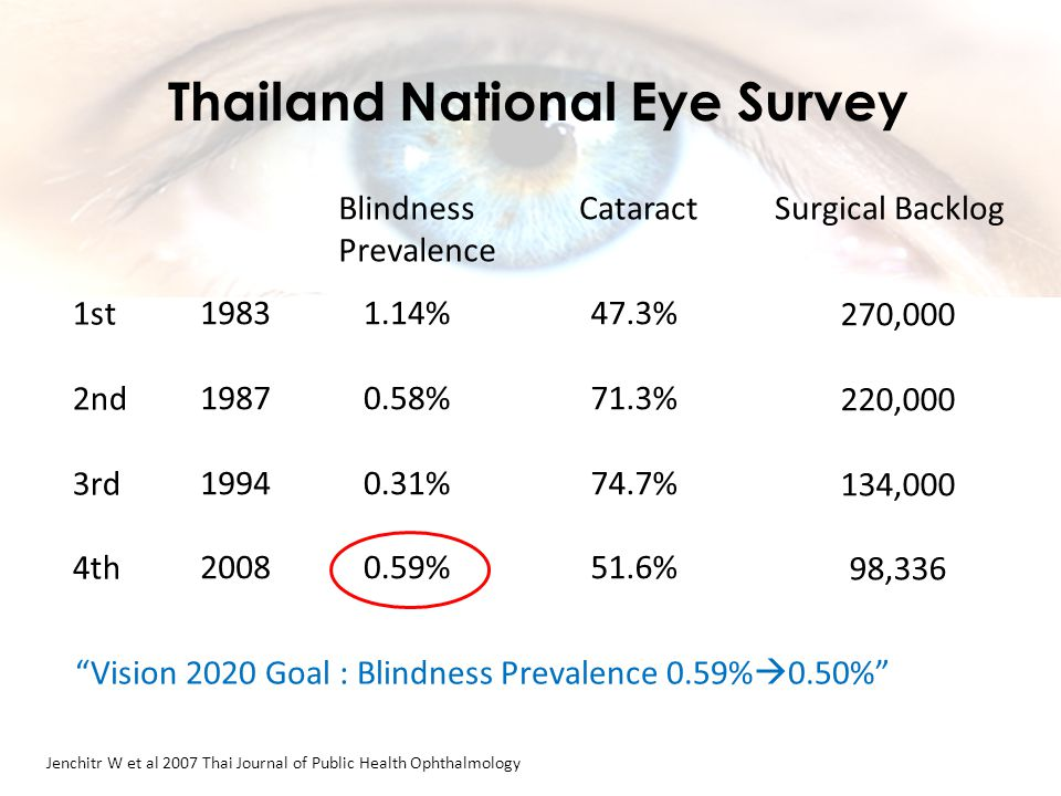 1983 1987 1994 2008 Blindness Prevalence 1.14% 0.58% 0.31% 0.59% Cataract 47.3% 71.3% 74.7% 51.6% Surgical Backlog 270,000 220,000 134,000 98,336 Jenchitr W et al 2007 Thai Journal of Public Health Ophthalmology Thailand National Eye Survey 1st 2nd 3rd 4th Vision 2020 Goal : Blindness Prevalence 0.59%  0.50%