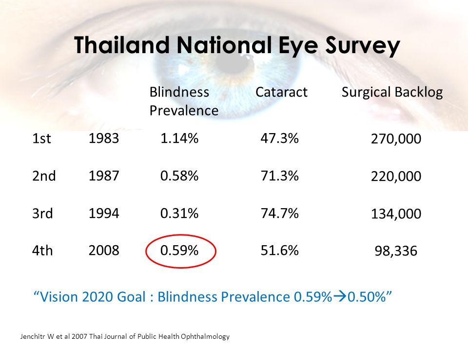 การผ่าตัดรักษาจอประสาทตาเสื่อมจาก เบาหวาน ( Vitrectomy & Endolaser)