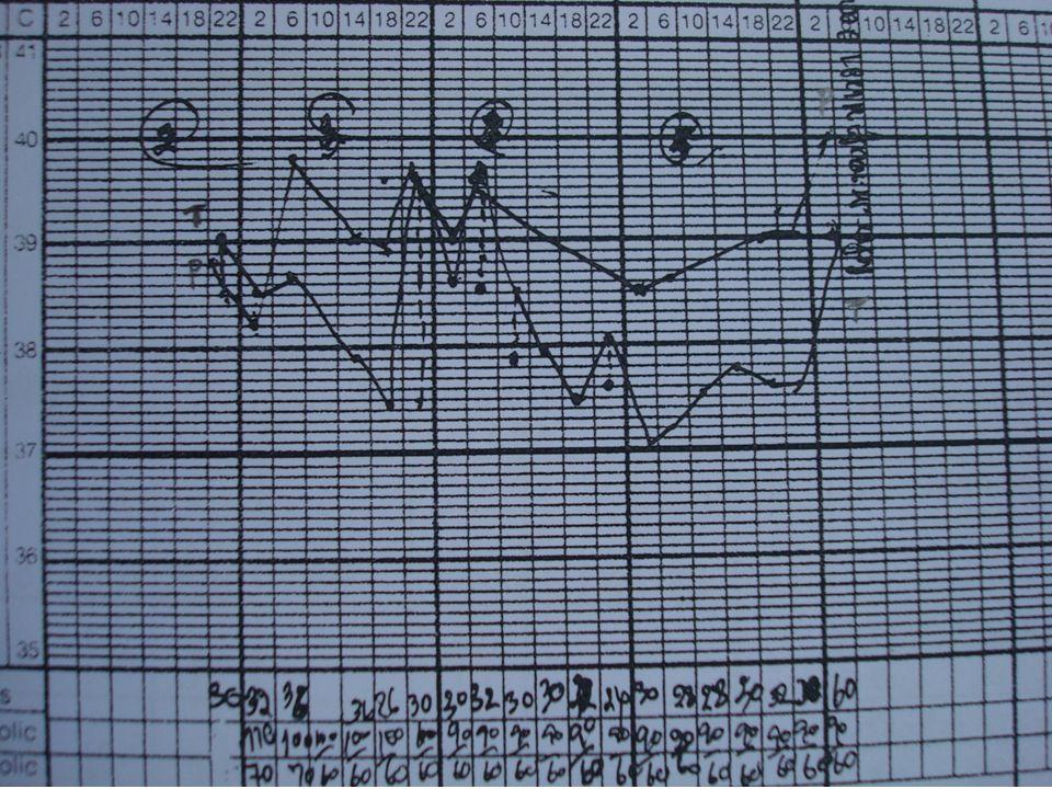 DateTimeBPTPR RR Hct Rx /LabS/S 11 /03 D 2 21.11-3911 6 30 Admit ห้องแยก เช้า CBC, UA, CXR 5%D/N/3 500 ml @ 60 ml/hr, Ventolin prn for dyspnea ORS prn, Oseltamivir, Para, Ammon carb แรกรับ เด็ก active รู้สึกตัวดี มีไข้ ไอมี เสมหะ มึน้ำมูก ดื่มน้ำได้ น้อย O2 sat 96% I/O(21-24) I = 500(oral)+IV.