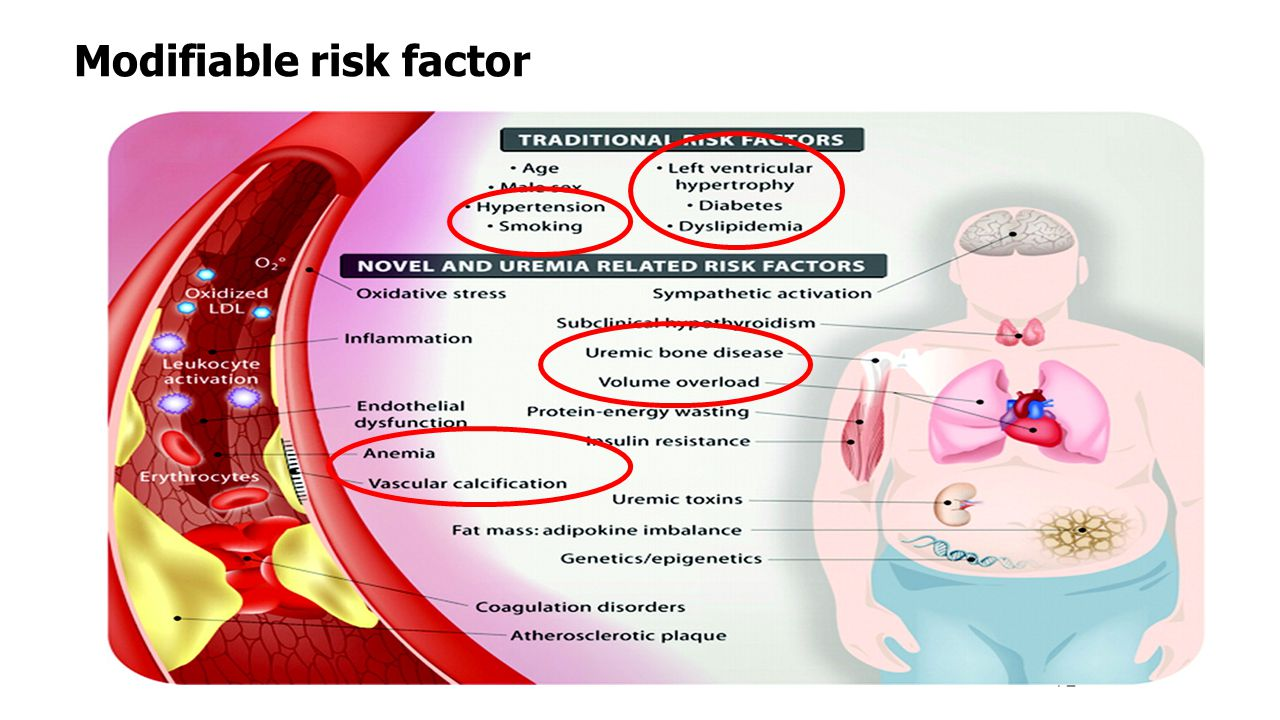 Modifiable risk factor 72