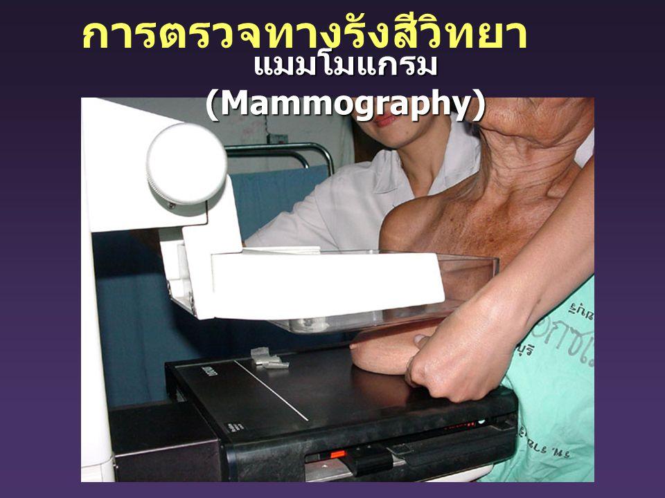 แมมโมแกรม (Mammography) การตรวจทางรังสีวิทยา