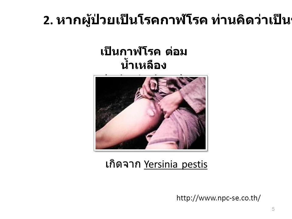 2. หากผู้ป่วยเป็นโรคกาฬโรค ท่านคิดว่าเป็นชนิดใด เกิดจาก Yersinia pestis เป็นกาฬโรค ต่อม น้ำเหลือง (Bubonic Plague) http://www.npc-se.co.th/ 5