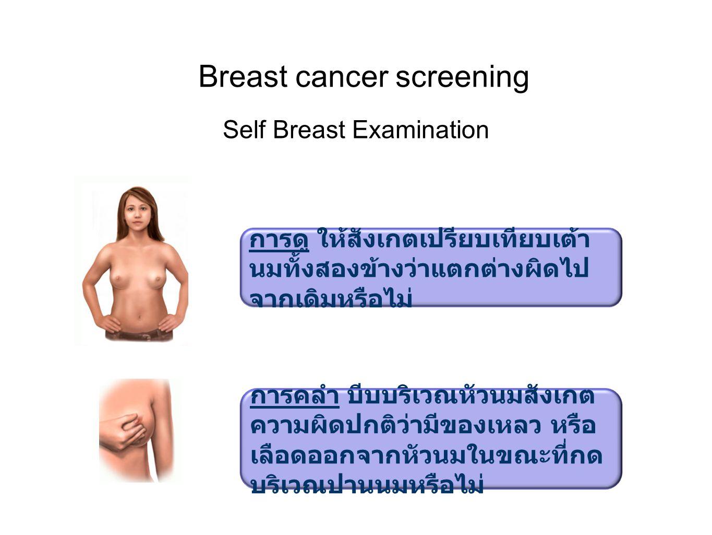 Self Breast Examination Breast cancer screening การดู ให้สังเกตเปรียบเทียบเต้า นมทั้งสองข้างว่าแตกต่างผิดไป จากเดิมหรือไม่ การคลำ บีบบริเวณหัวนมสังเกต