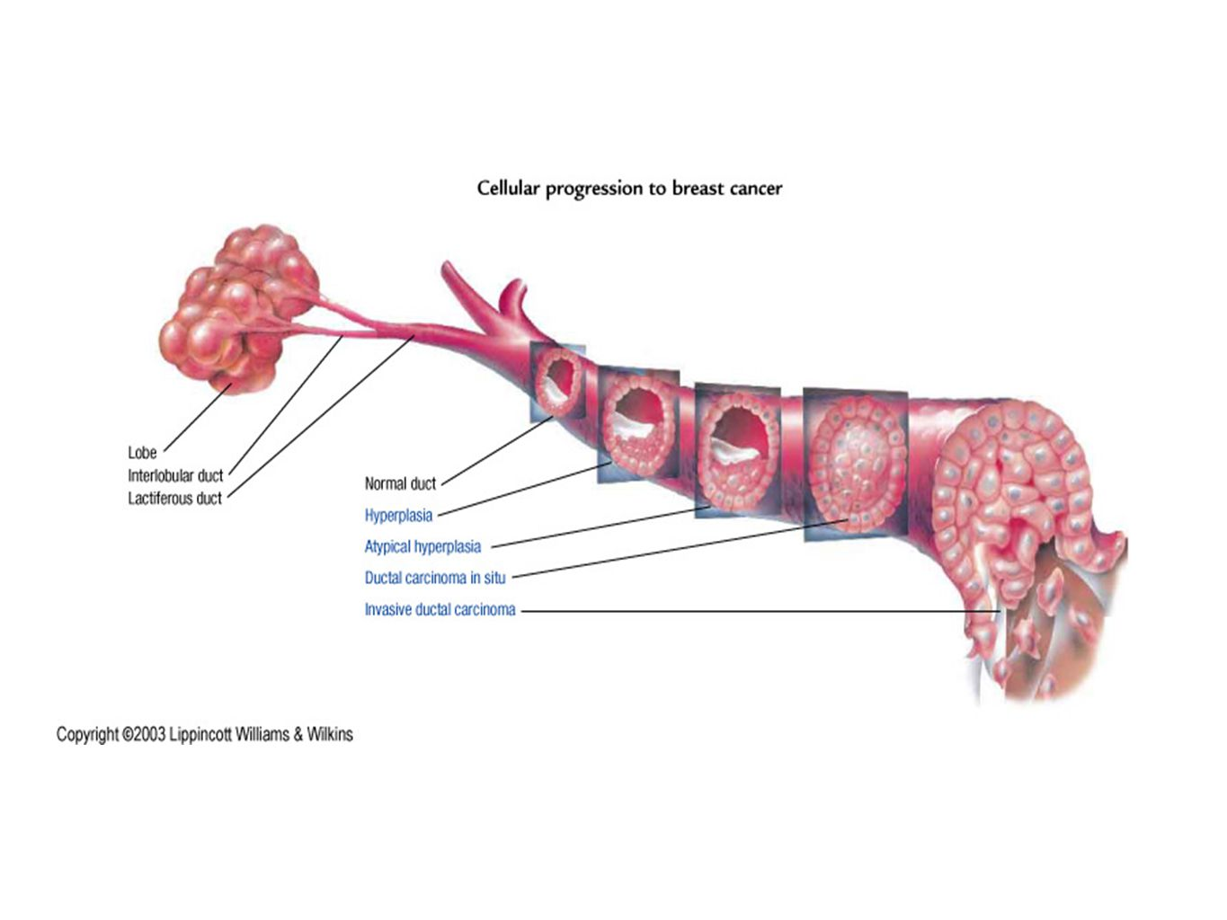 Breast cancer Pre-cancerous Invasive cancer