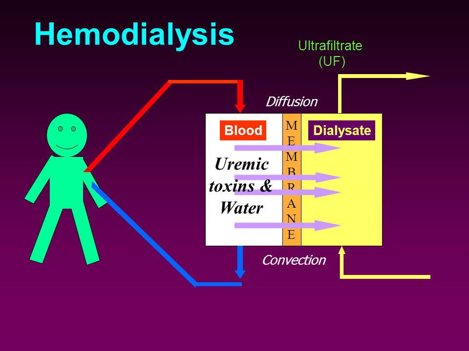 Hemodialysis MEMBRANEMEMBRANE BloodDialysate Uremic toxins & Water Diffusion Convection Ultrafiltrate (UF)