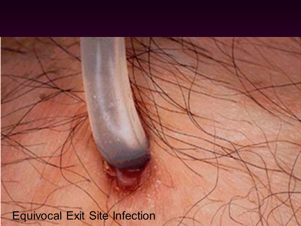 Infection 1.Exit site infection & Tunnel infection - common cause: staph. aureus - Empirical Rx of exit site infection : Dicloxacillin, oral, 14 d Chr