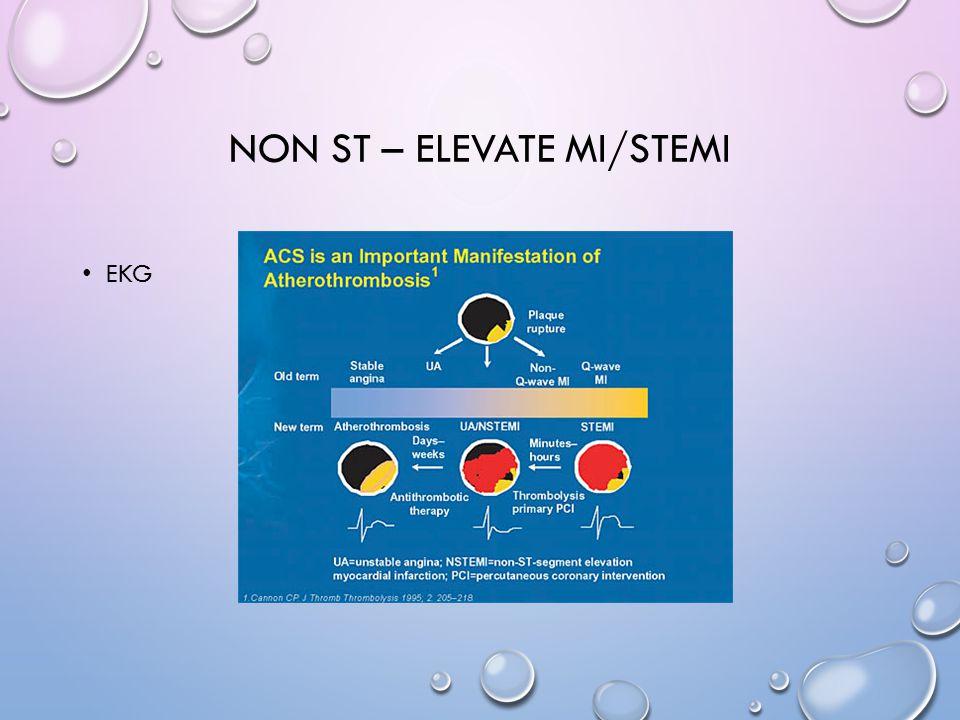 NON ST – ELEVATE MI/STEMI EKG