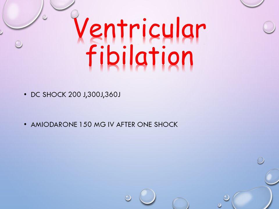 DC SHOCK 200 J,300J,360J AMIODARONE 150 MG IV AFTER ONE SHOCK
