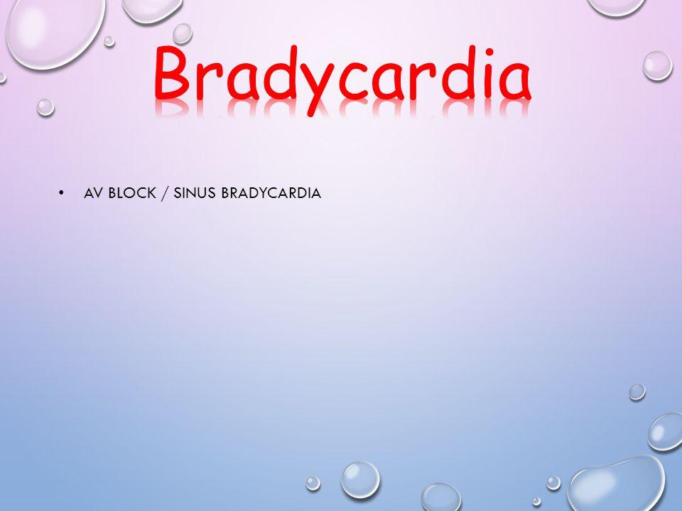 AV BLOCK / SINUS BRADYCARDIA