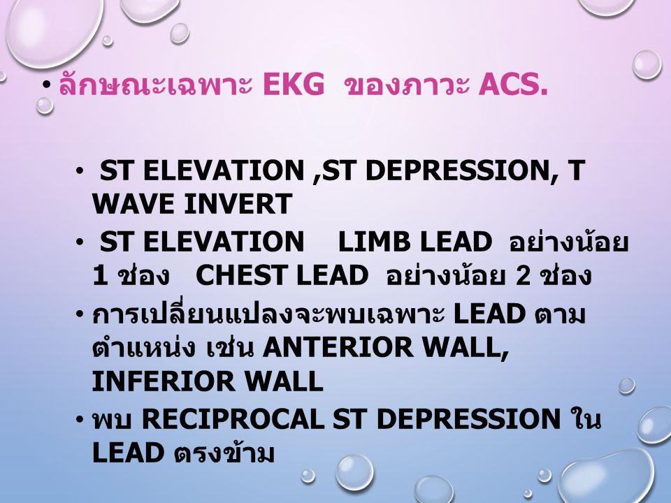 ลักษณะเฉพาะ EKG ของภาวะ ACS.