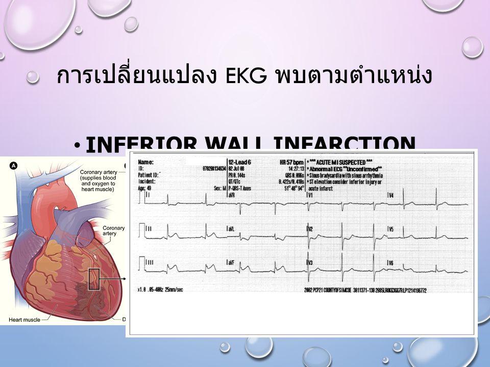 การเปลี่ยนแปลง EKG พบตามตำแหน่ง INFERIOR WALL INFARCTION LEAD II,III,AVF