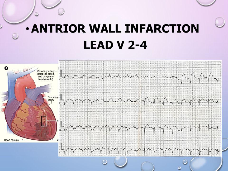 ANTRIOR WALL INFARCTION LEAD V 2-4