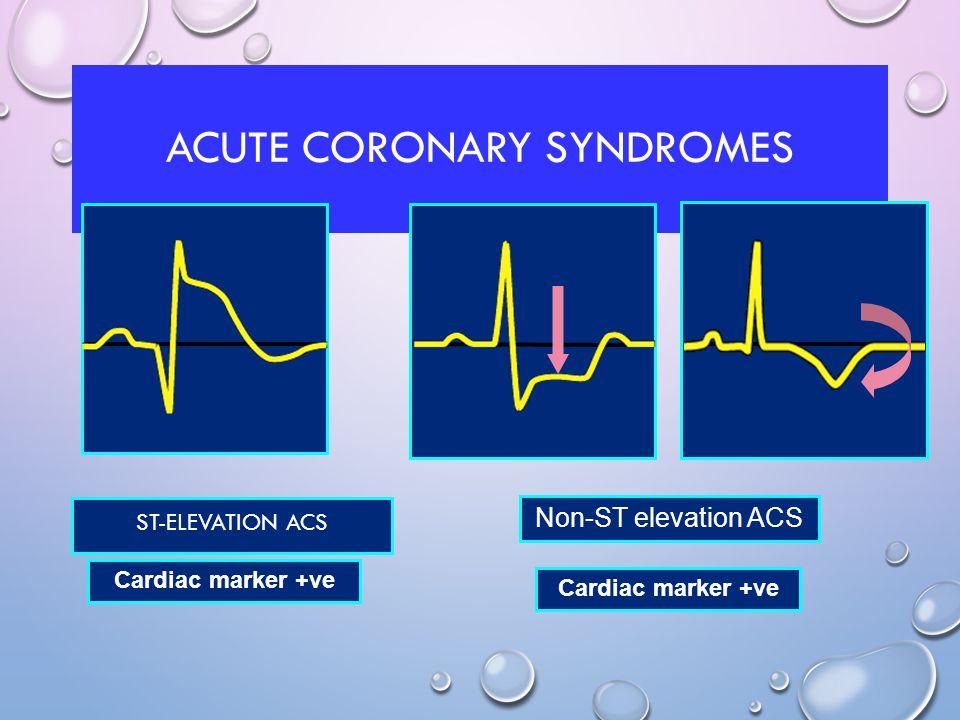 ACUTE CORONARY SYNDROMES ST-ELEVATION ACS Cardiac marker +ve Non-ST elevation ACS Cardiac marker +ve