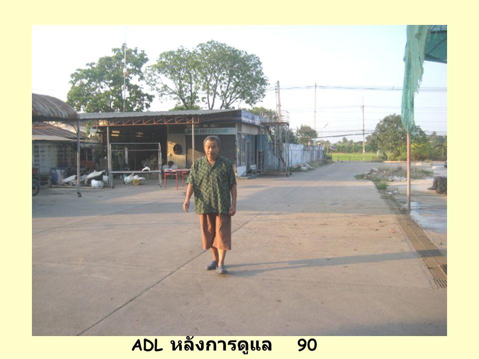 ADL ก่อนการดูแล 45 คะแนน ADL หลังการดูแล 90 คะแนน