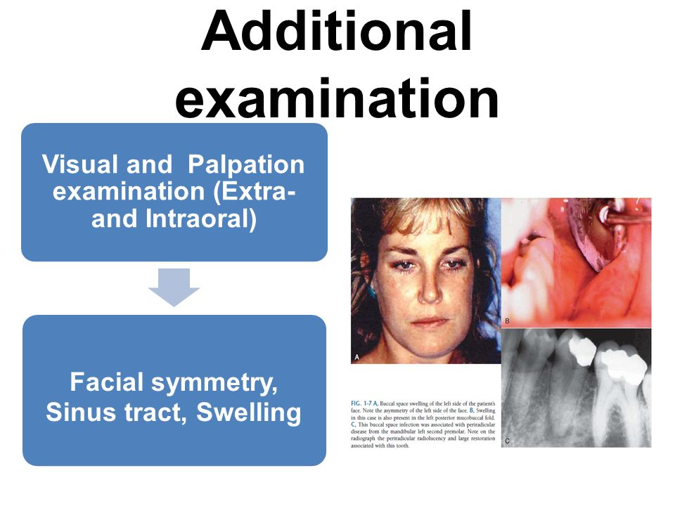 Visual and Palpation examination (Extra- and Intraoral) Facial symmetry, Sinus tract, Swelling