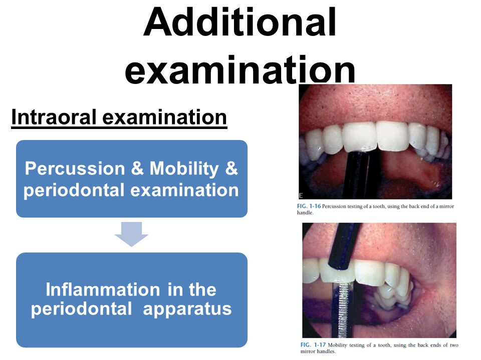 Additional examination Intraoral examination Percussion & Mobility & periodontal examination Inflammation in the periodontal apparatus