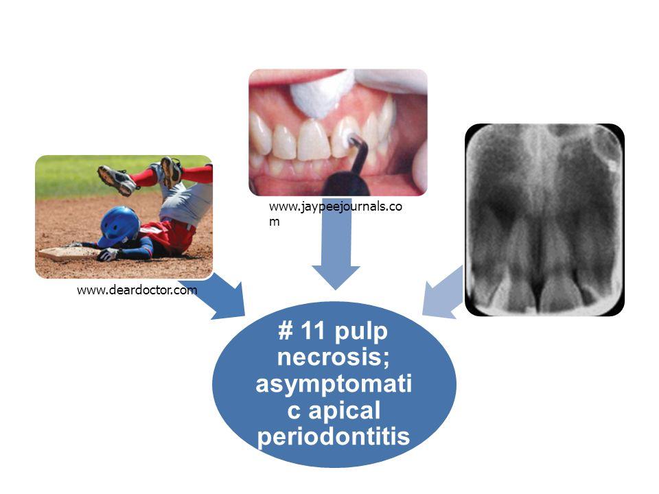 # 11 pulp necrosis; asymptomati c apical periodontitis www.deardoctor.com www.jaypeejournals.co m