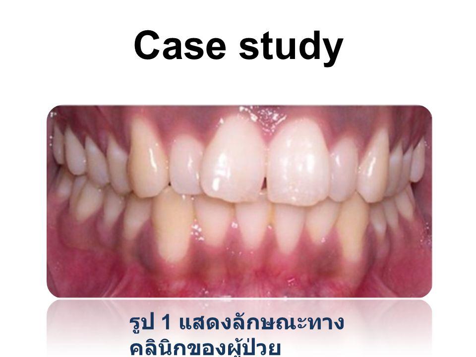 Case study รูป 1 แสดงลักษณะทาง คลินิกของผู้ป่วย