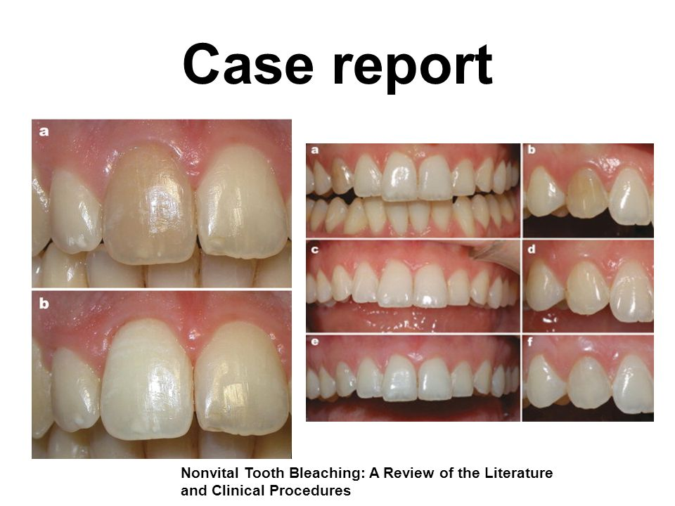 Case report Nonvital Tooth Bleaching: A Review of the Literature and Clinical Procedures