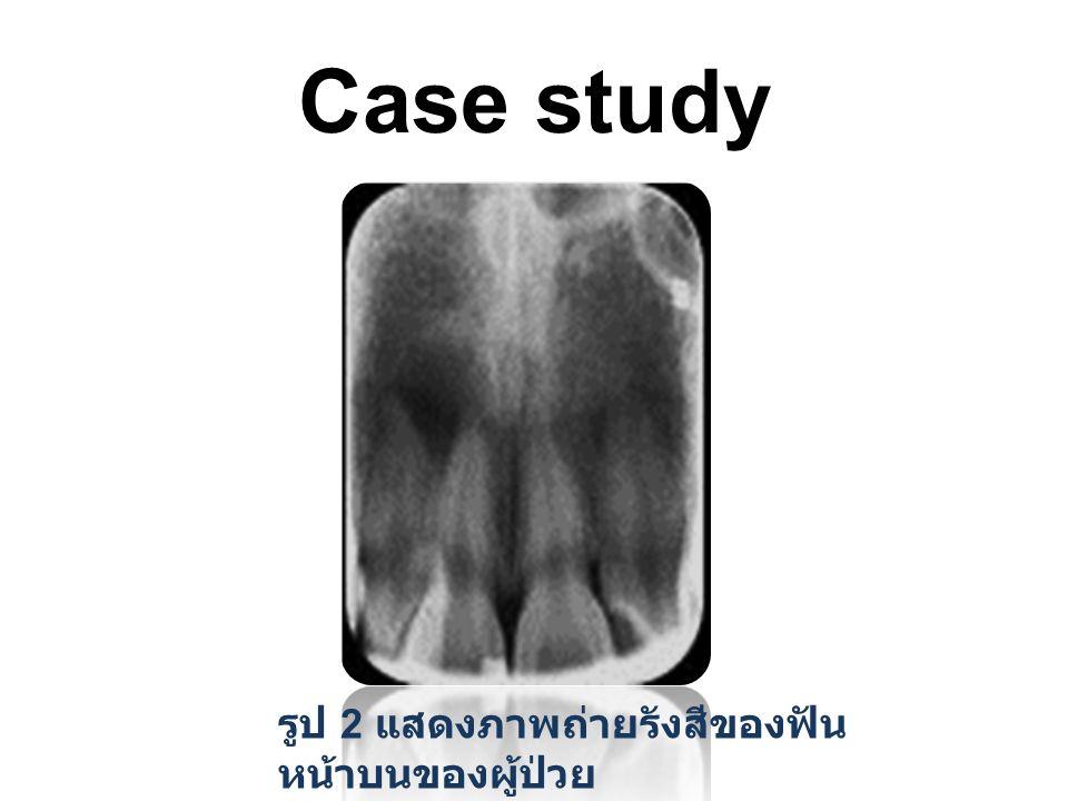Case study รูป 2 แสดงภาพถ่ายรังสีของฟัน หน้าบนของผู้ป่วย
