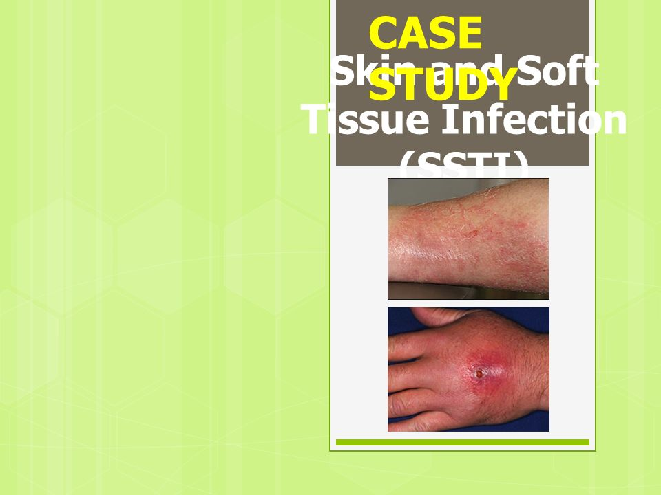 Skin and Soft Tissue Infection (SSTI) CASE STUDY