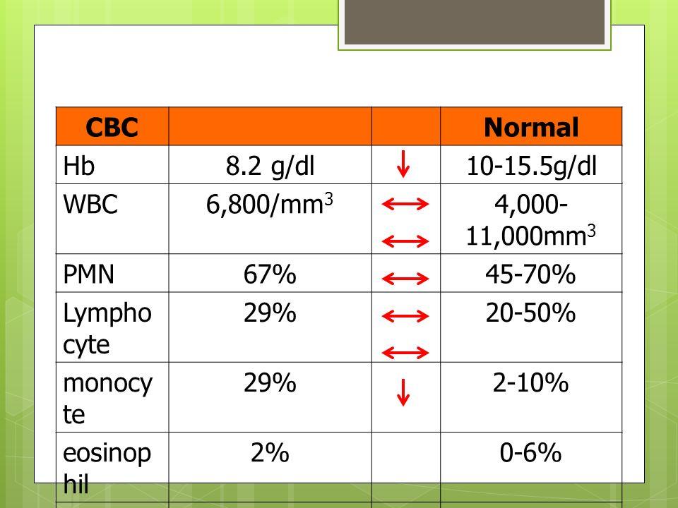 CBCNormal Hb8.2 g/dl10-15.5g/dl WBC6,800/mm 3 4,000- 11,000mm 3 PMN67%45-70% Lympho cyte 29%20-50% monocy te 29%2-10% eosinop hil 2%0-6% Platelets1.8×10 3 /mm 3 (1.8x10 9 /L) 150- 400x10 9 /L