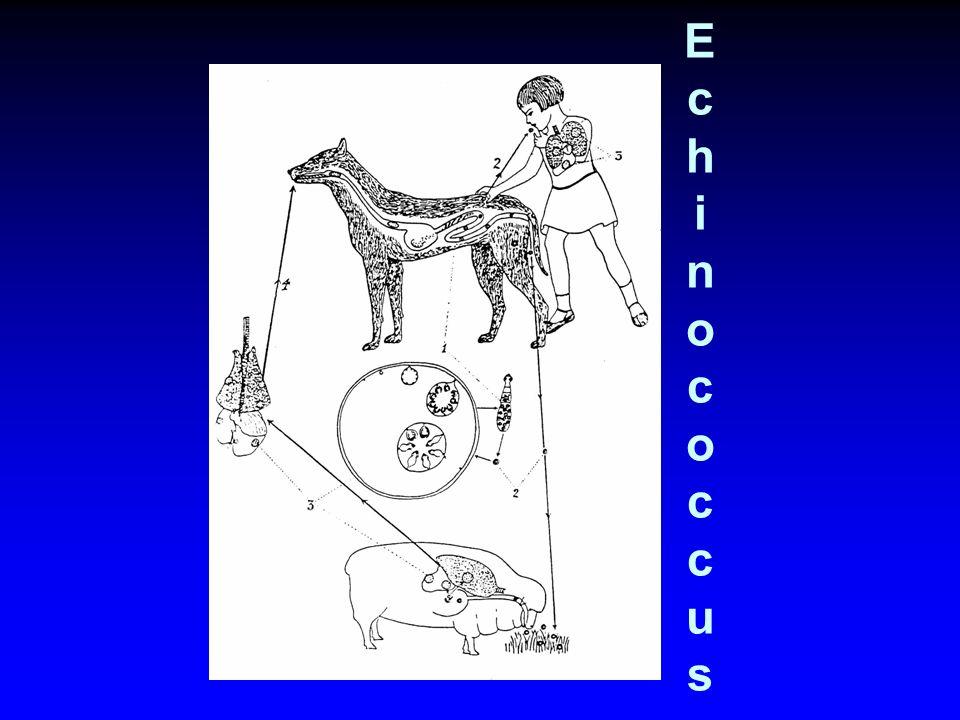 EchinococcusEchinococcus