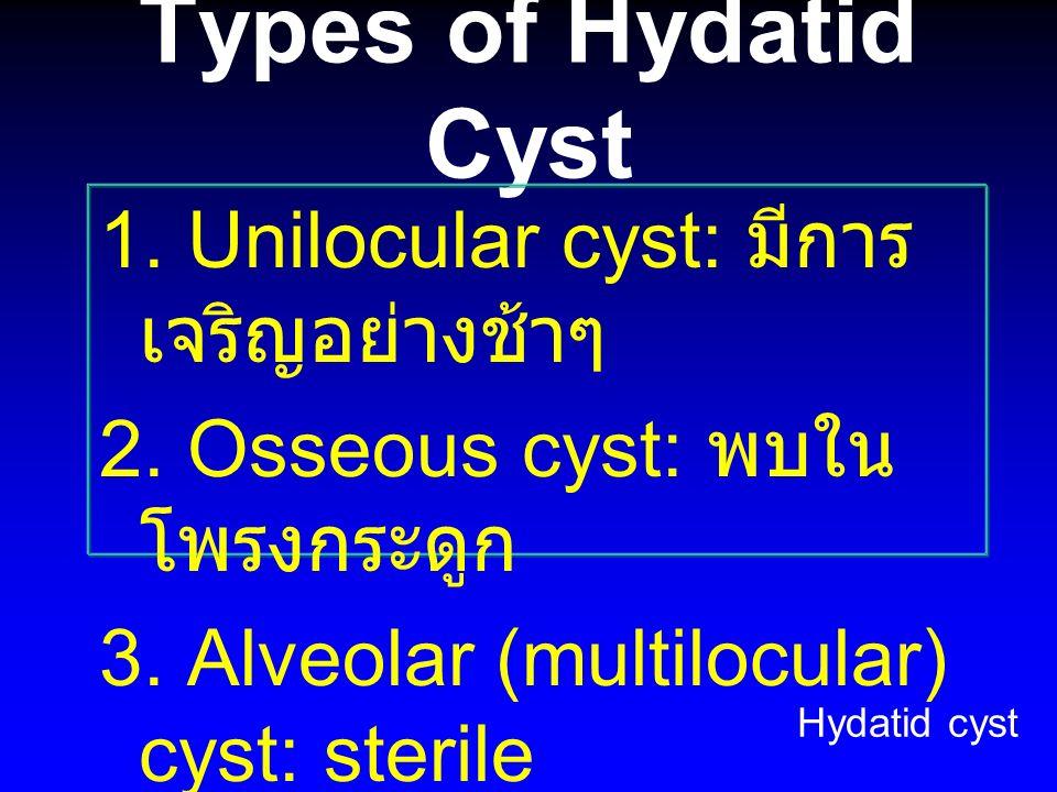 Types of Hydatid Cyst 1. Unilocular cyst: มีการ เจริญอย่างช้าๆ 2. Osseous cyst: พบใน โพรงกระดูก 3. Alveolar (multilocular) cyst: sterile Hydatid cyst