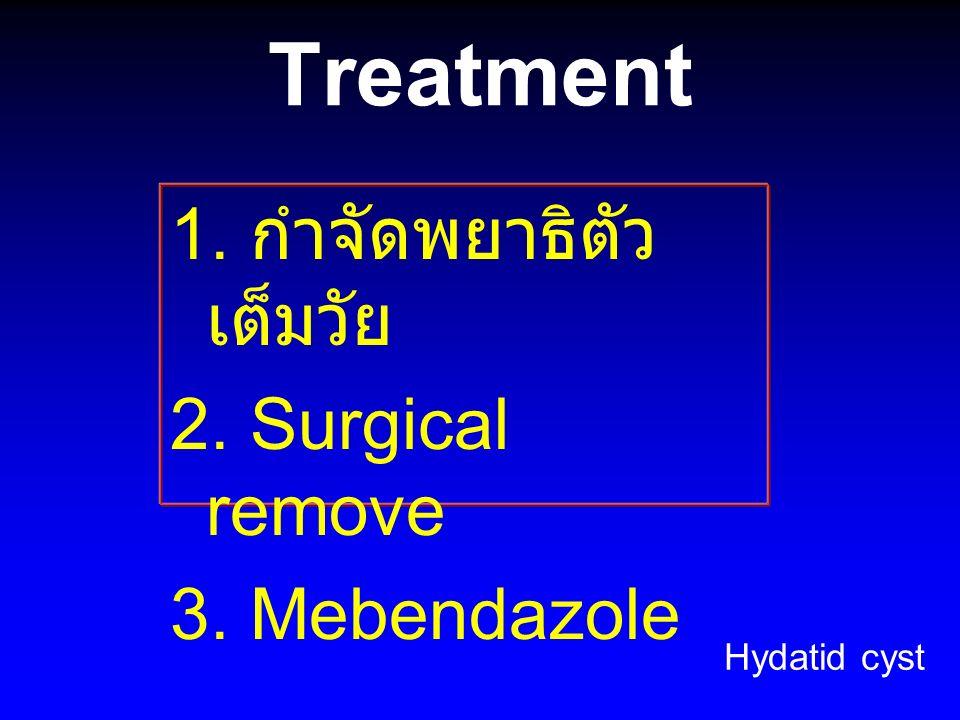 Treatment 1. กำจัดพยาธิตัว เต็มวัย 2. Surgical remove 3. Mebendazole Hydatid cyst