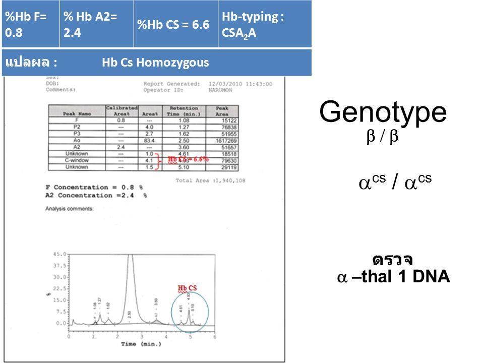 %Hb A = 33.5 %HbF= 50.8 % Hb E= 14.0 Hb-typing : EFA แปลผล : beta thal /Hb E Genotype   EE ตรวจ –– thal 1 DNA