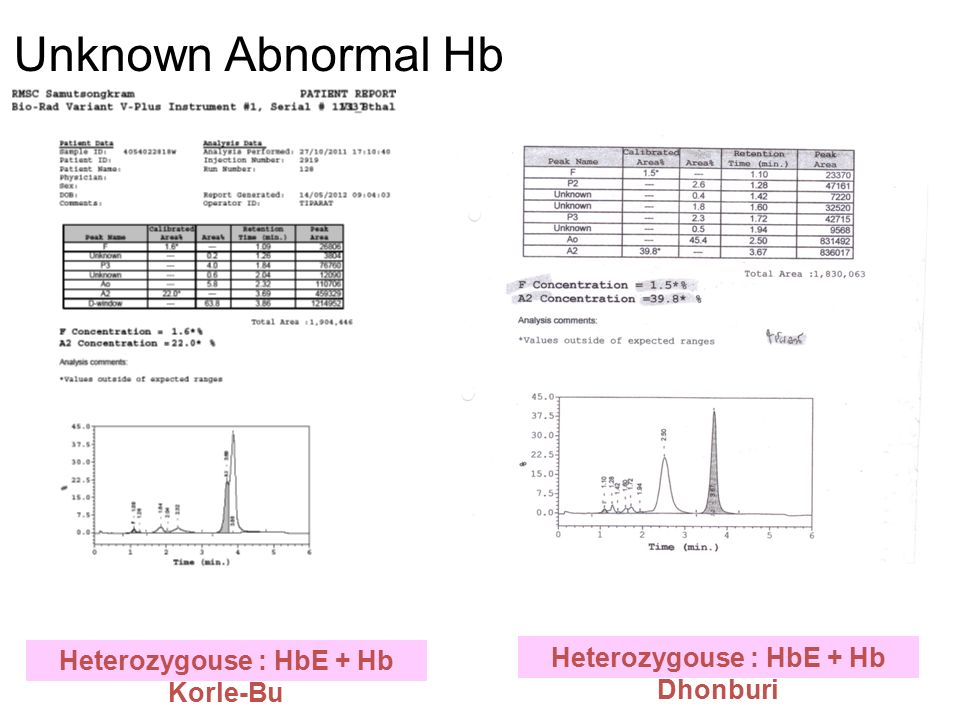 HbA 2 /E (%)Hb F (%)HbTyping การแปลผล E = 10 – 20, พบ Bart's < 8EABart'sEABart's disease ( ตรวจ DNA  -thal1) E  40, พบ Bart's > 10EFBart's  E /  E  0 /  E EFBart's disease ( ตรวจ DNA  -thal1) ( ตรวจ Beta mutation) A 2 < 4, พบ Bart's H < 8A 2 ABart'sHHb H disease ( ตรวจ DNA  -thal1) A 2 < 4 พบ CS และ Bart's H < 8CSA 2 A Bart'sH Hb H disease with Hb CS ( ตรวจ DNA  -thal1) A 2 < 3.5 และพบ CS < 8CSA 2 AHb CS trait or Homozygous Hb Cs ( ตรวจ DNA  -thal1) A 2 ใดๆ > 10A 2 FA  0 /  +  + /  + Heterozygous beta(0) and beta (+) or beta(+) and beta (+) ( ตรวจ DNA  -thal1) ( ตรวจ Beta mutation) A 2  4 > 80A2FA2F  0 /  0  + /  + Homozygous beta (0) or Heterzygous severe beta(+) ( ตรวจ DNA  -thal1) ( ตรวจ Beta mutation)